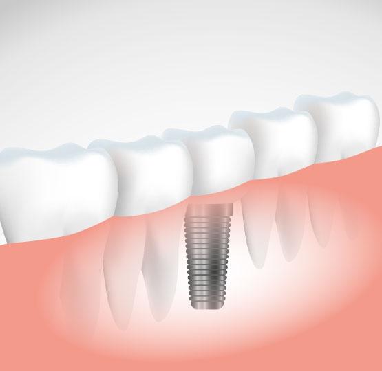 1 günde implant mümkün mü