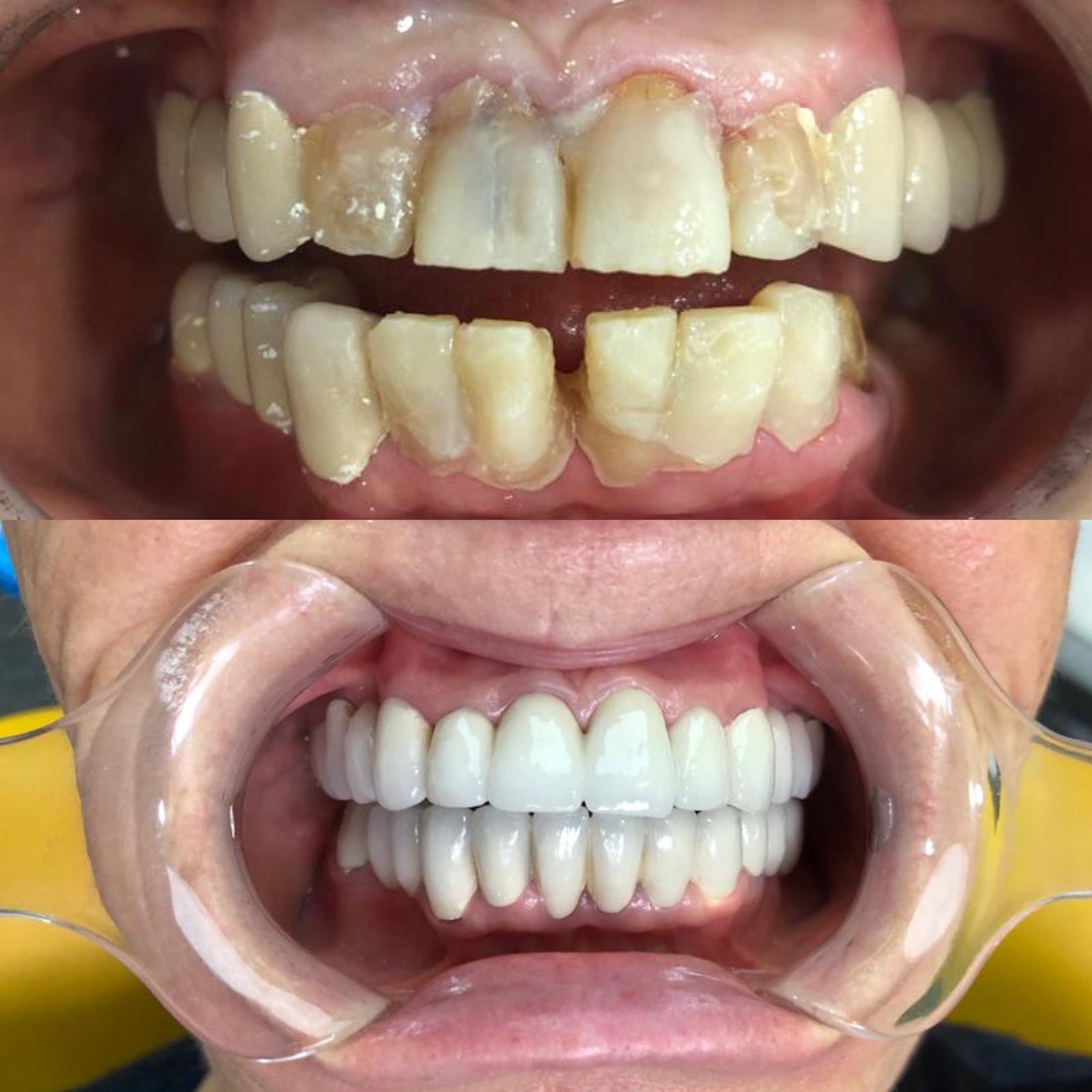 başakşehir porselen diş