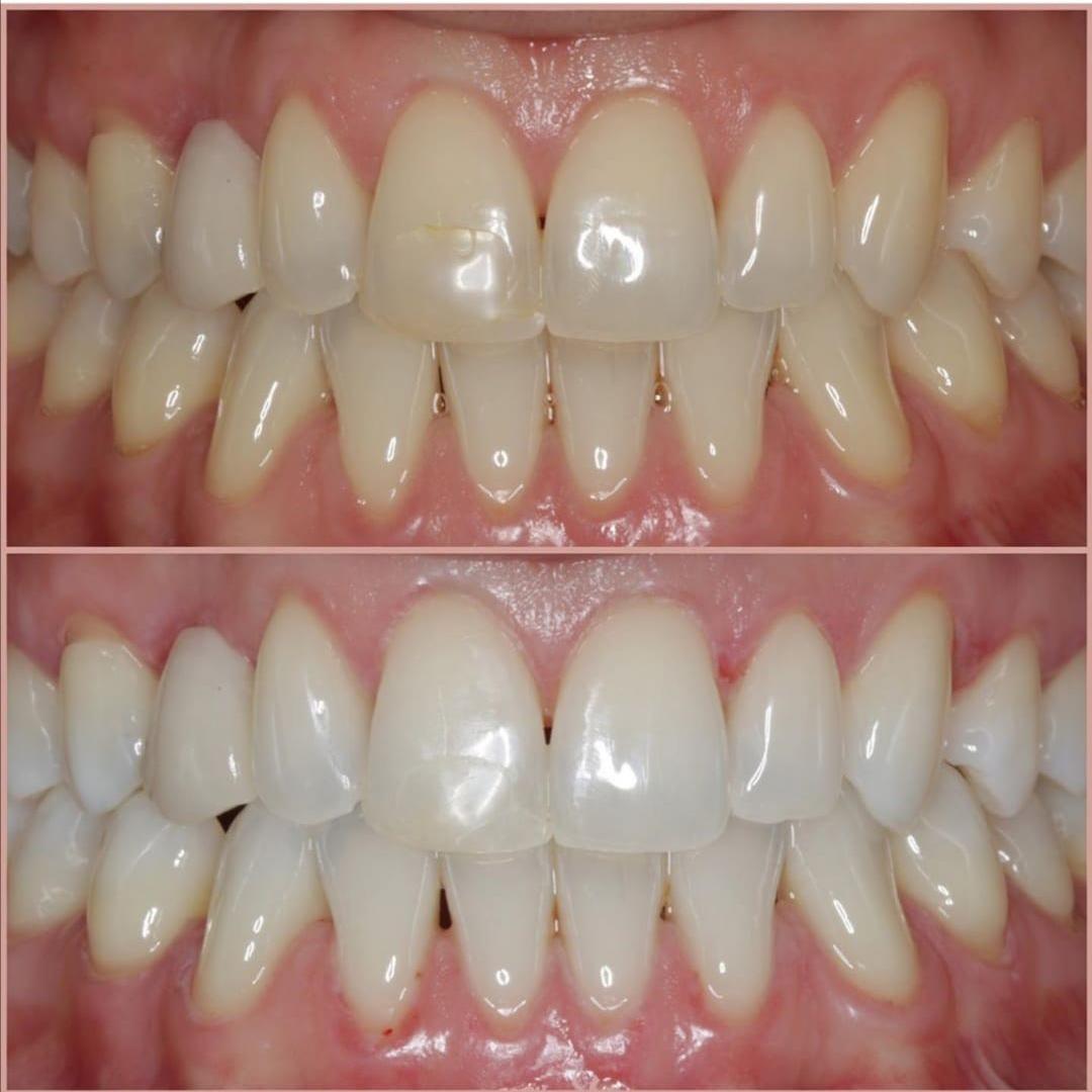 beyaz ışık diş beyazlatma tedavileri