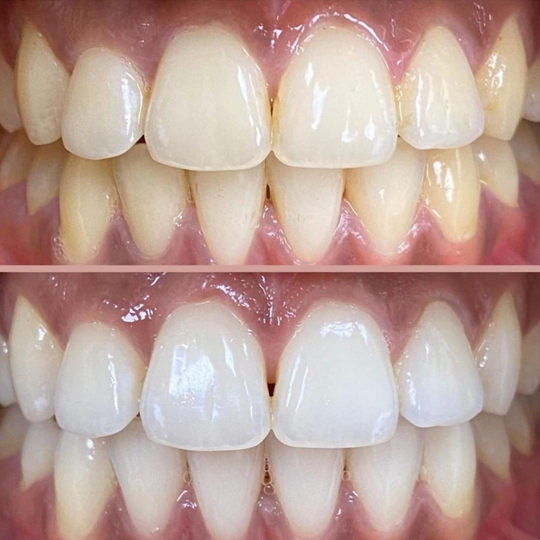 beyaz ışık diş beyazlatma tedavisi