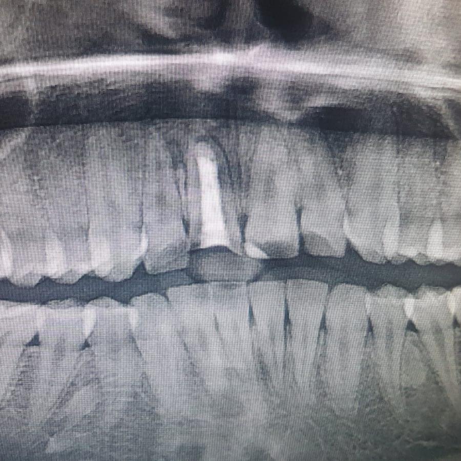 beyaz ışık endodonti