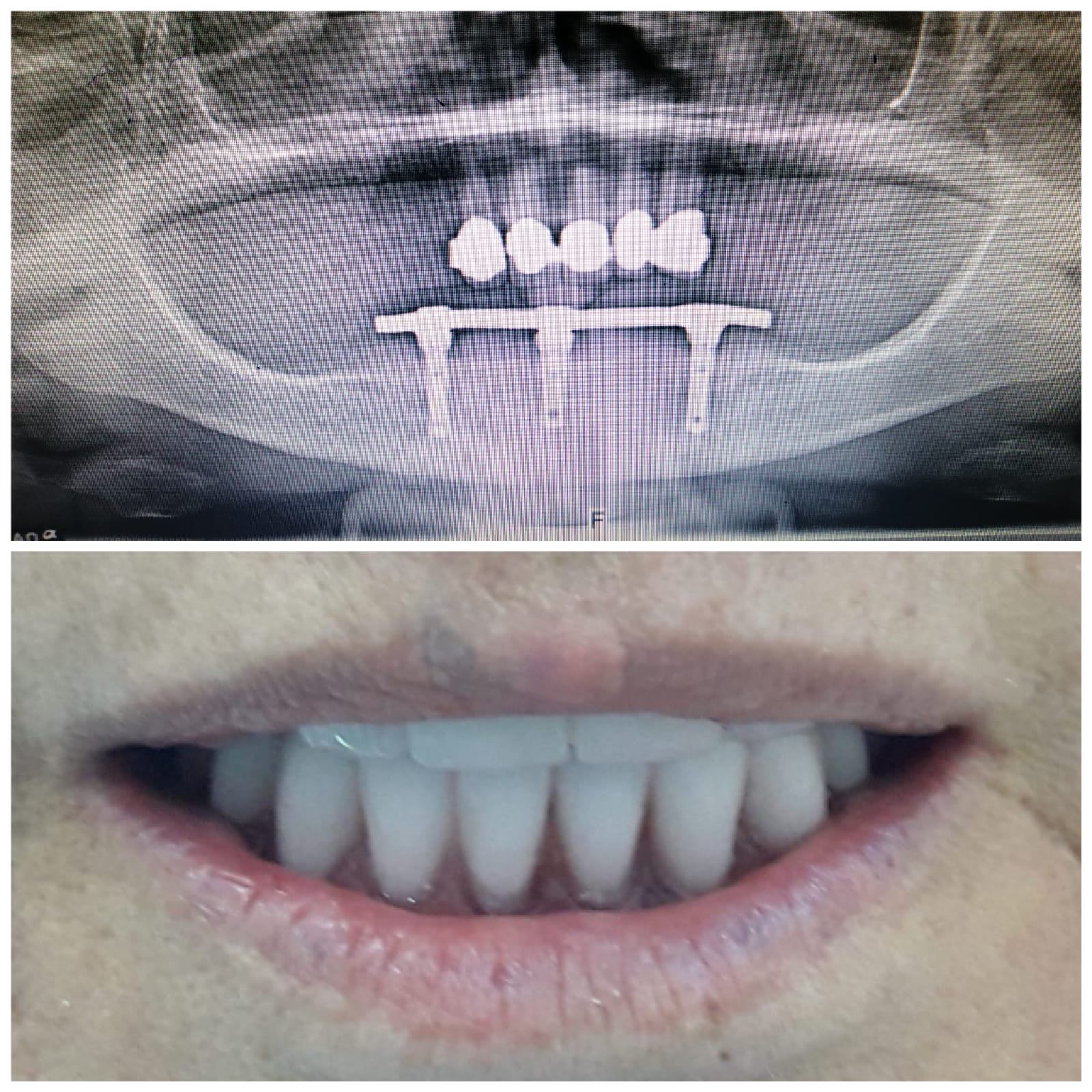 beyaz ışık implant