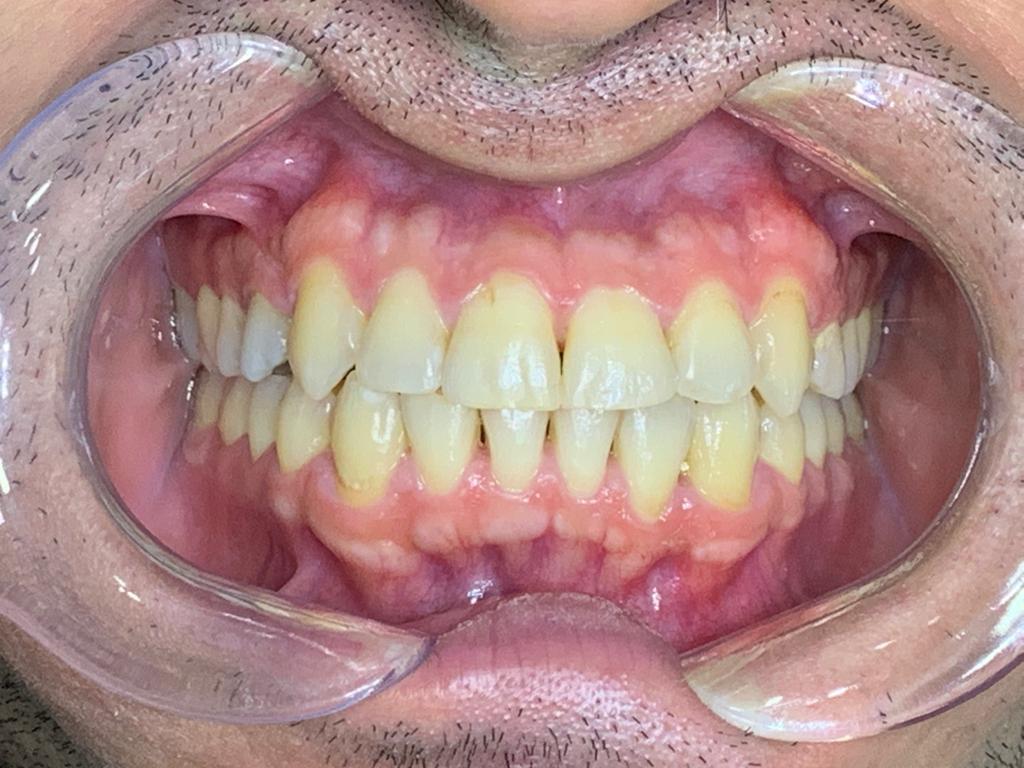 beyaz ışık ortodonti