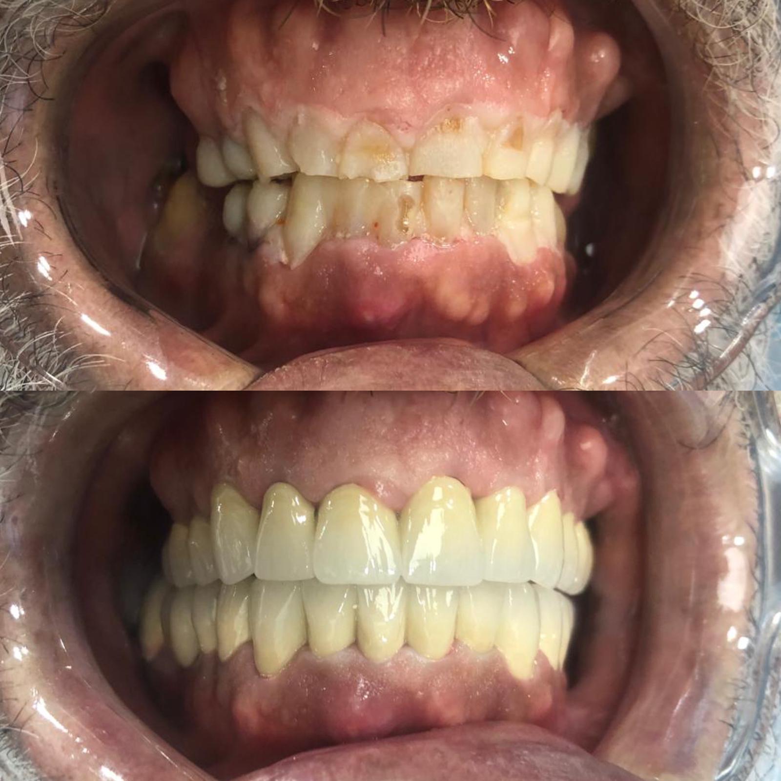 beyaz ışık porselen diş tedavileri