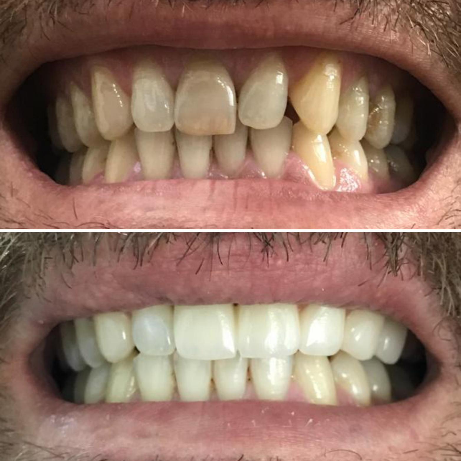 beyaz ışık porselen diş tedavisi