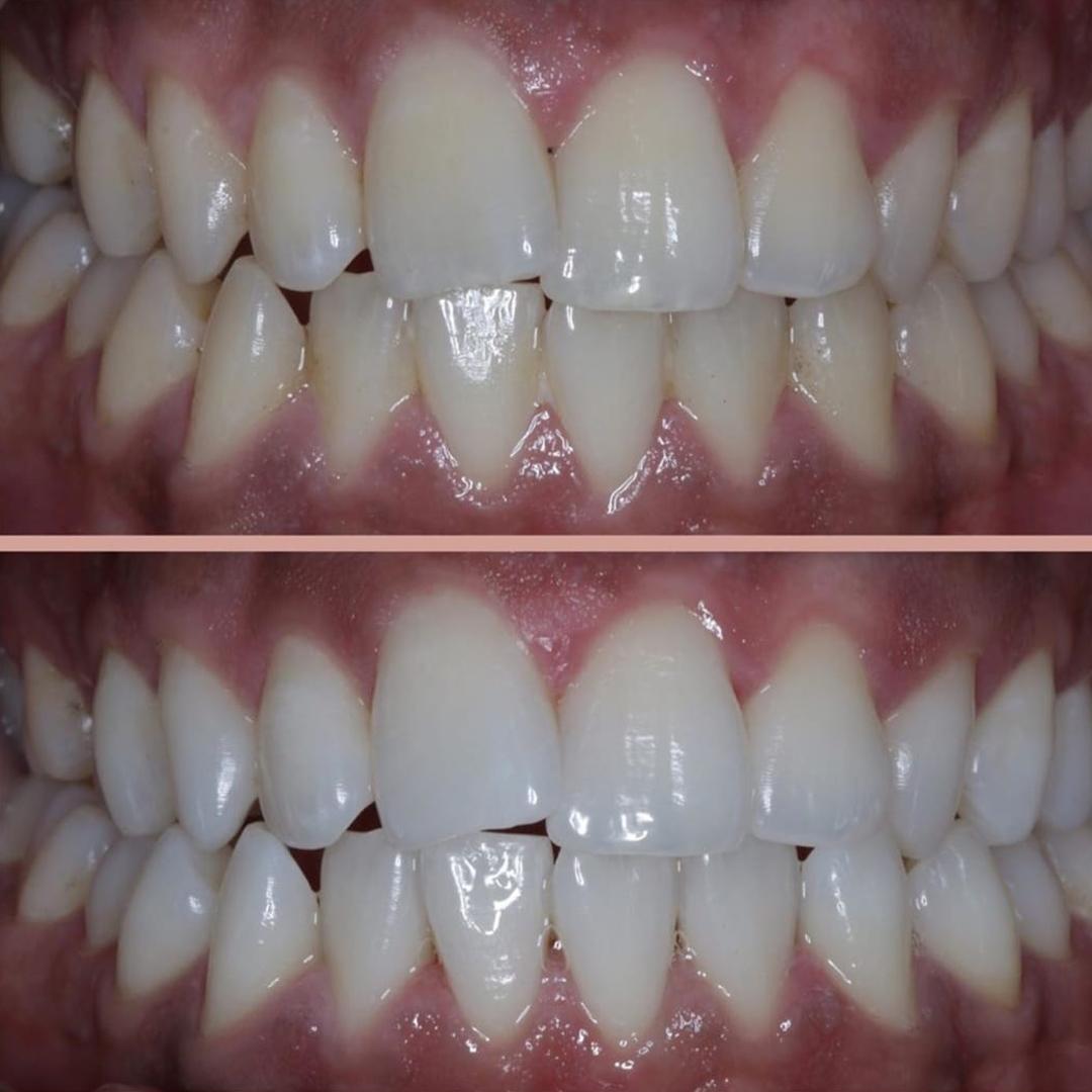 beyaz ışık tedavisi diş beyazlatma