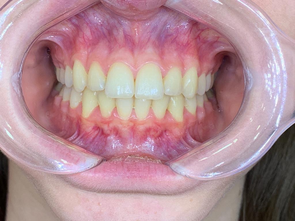 beyaz ışık tedavisi ortodonti