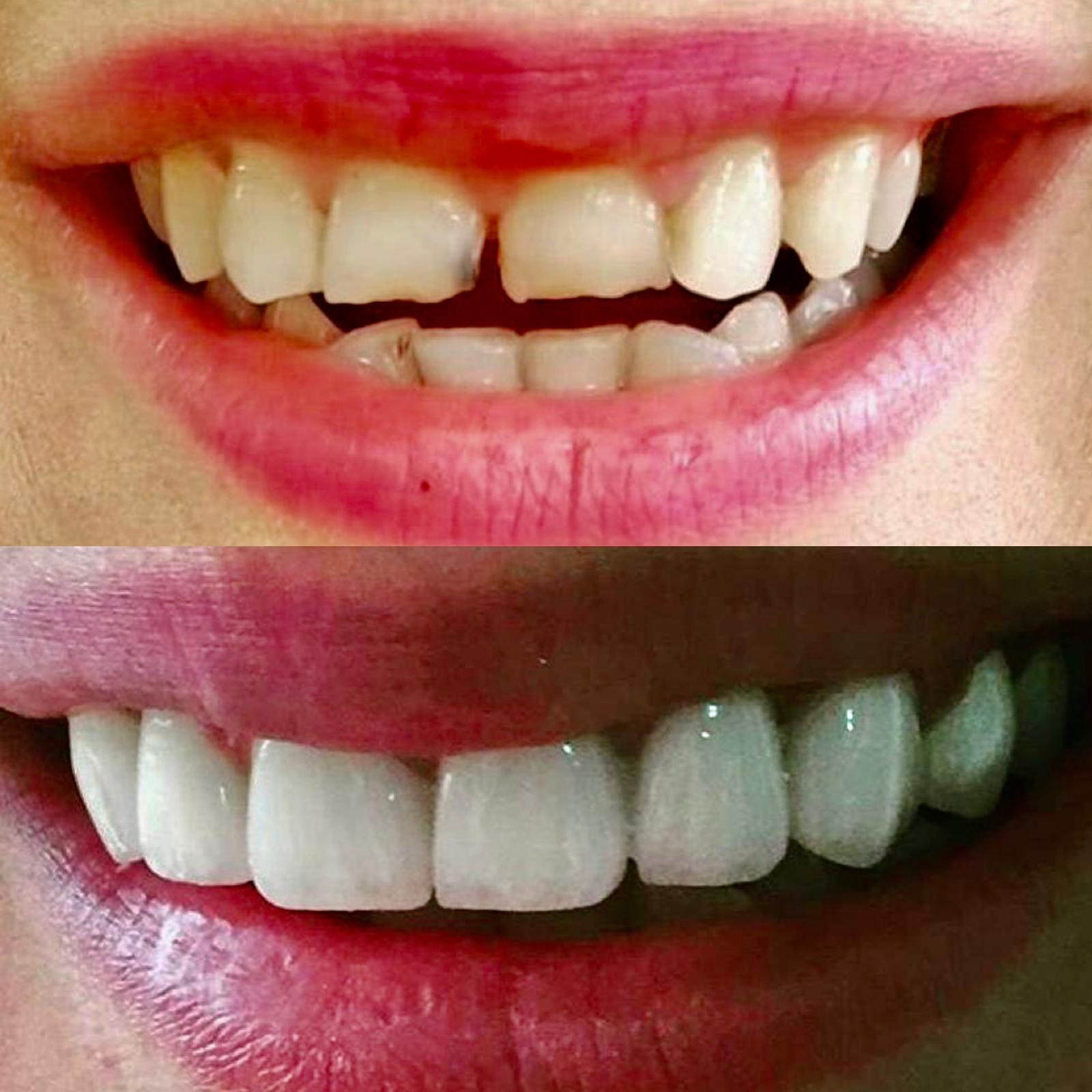 beyaz ışık tedavisi porselen diş