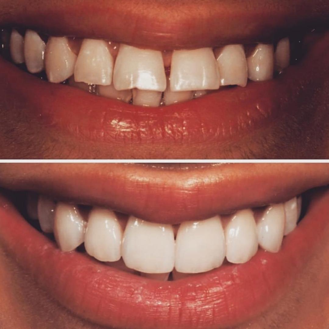 beyaz ışık tedavisi yaprak diş