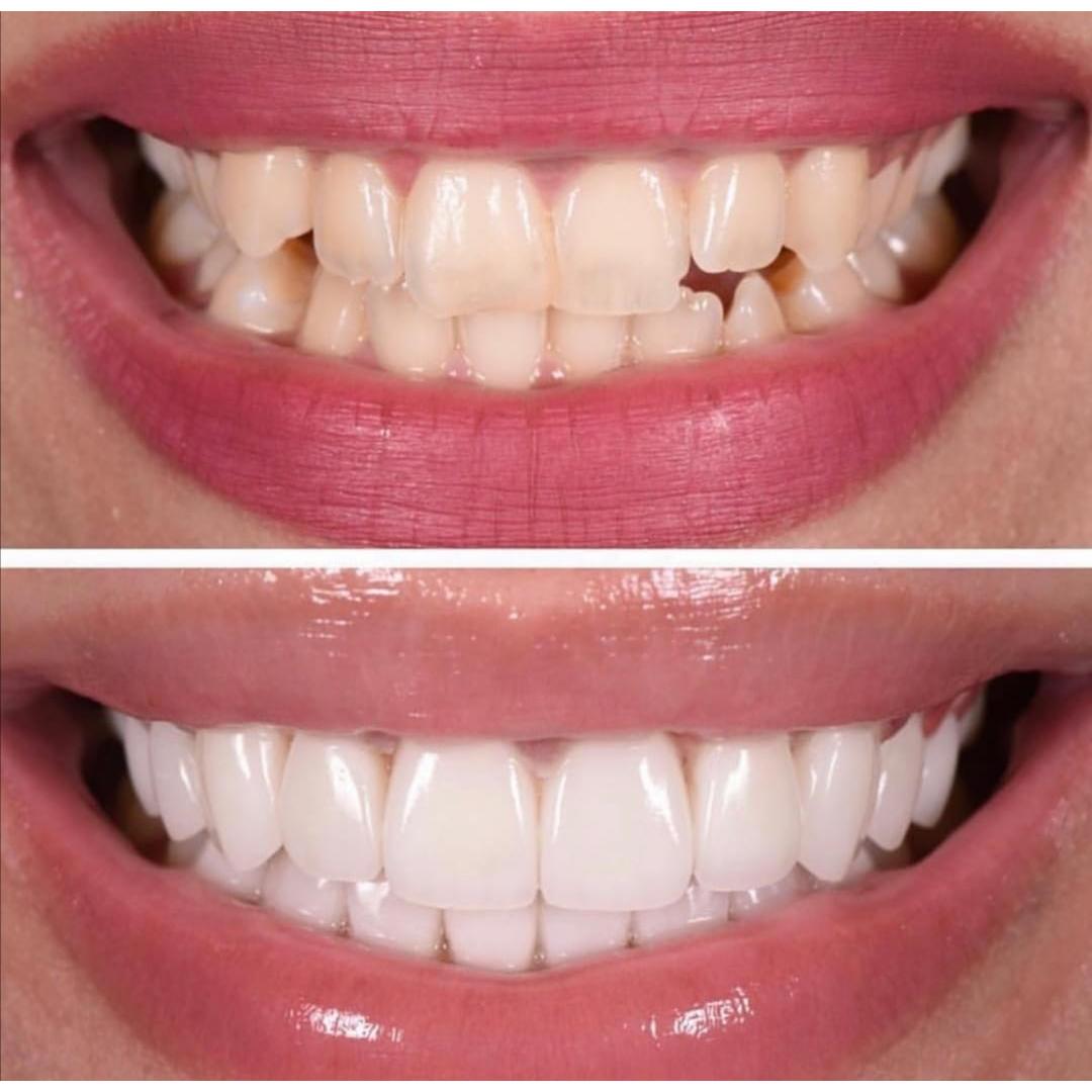 beyaz ışık yaprak diş tedavileri