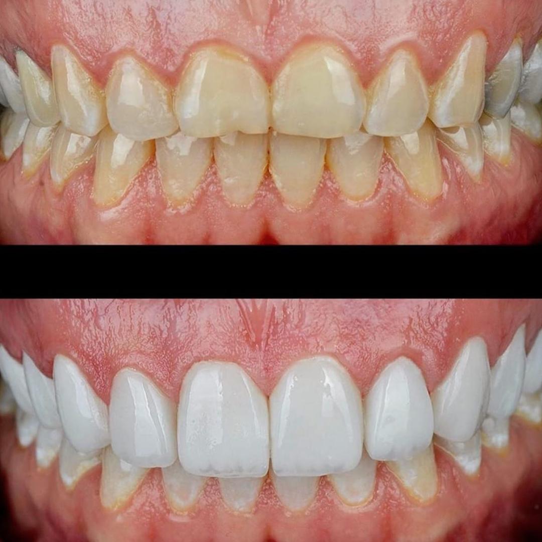 beyaz ışık yaprak diş tedavisi