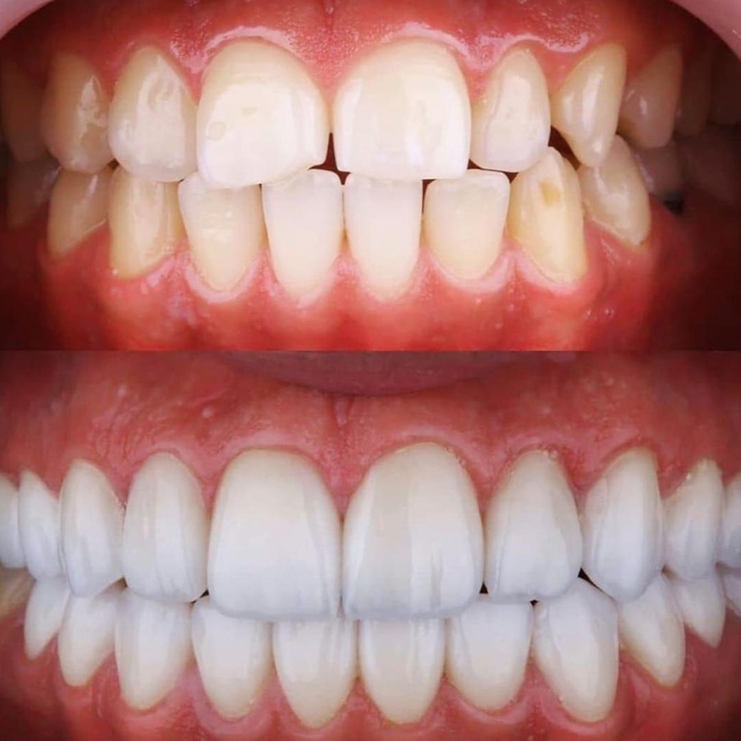 beyaz ışık yaprak diş