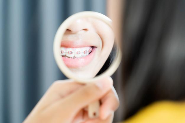 Diş teli takıldıktan sonra dikkat edilmesi gerekenler nelerdir?