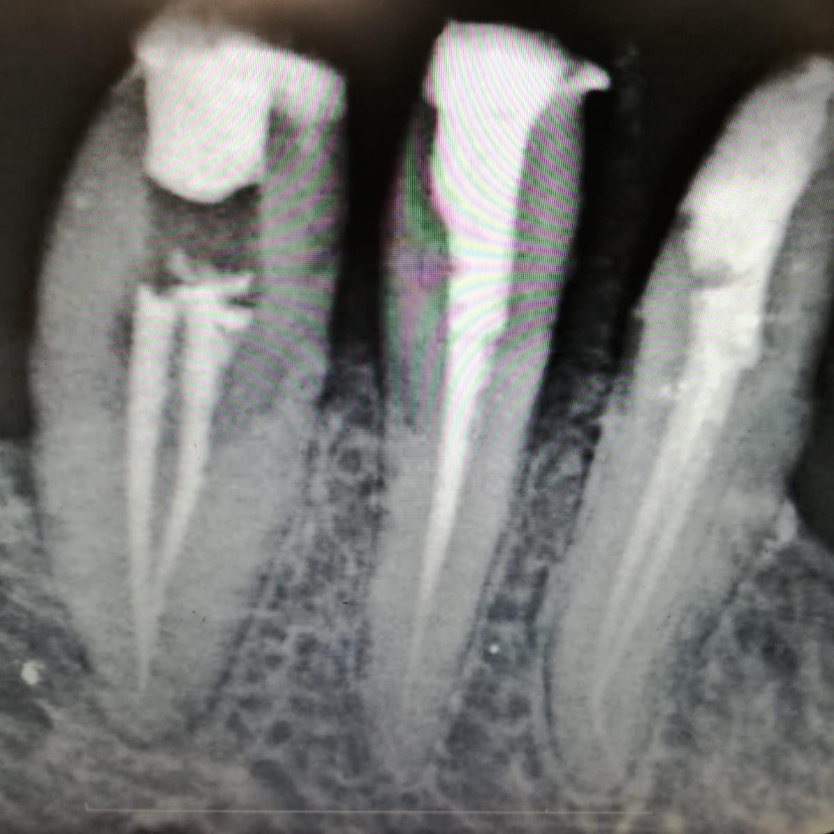 esenler tedavisi endodonti