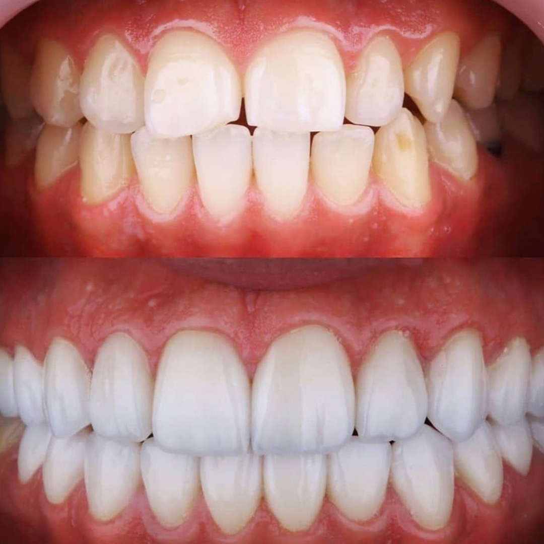 kadıköy yaprak diş