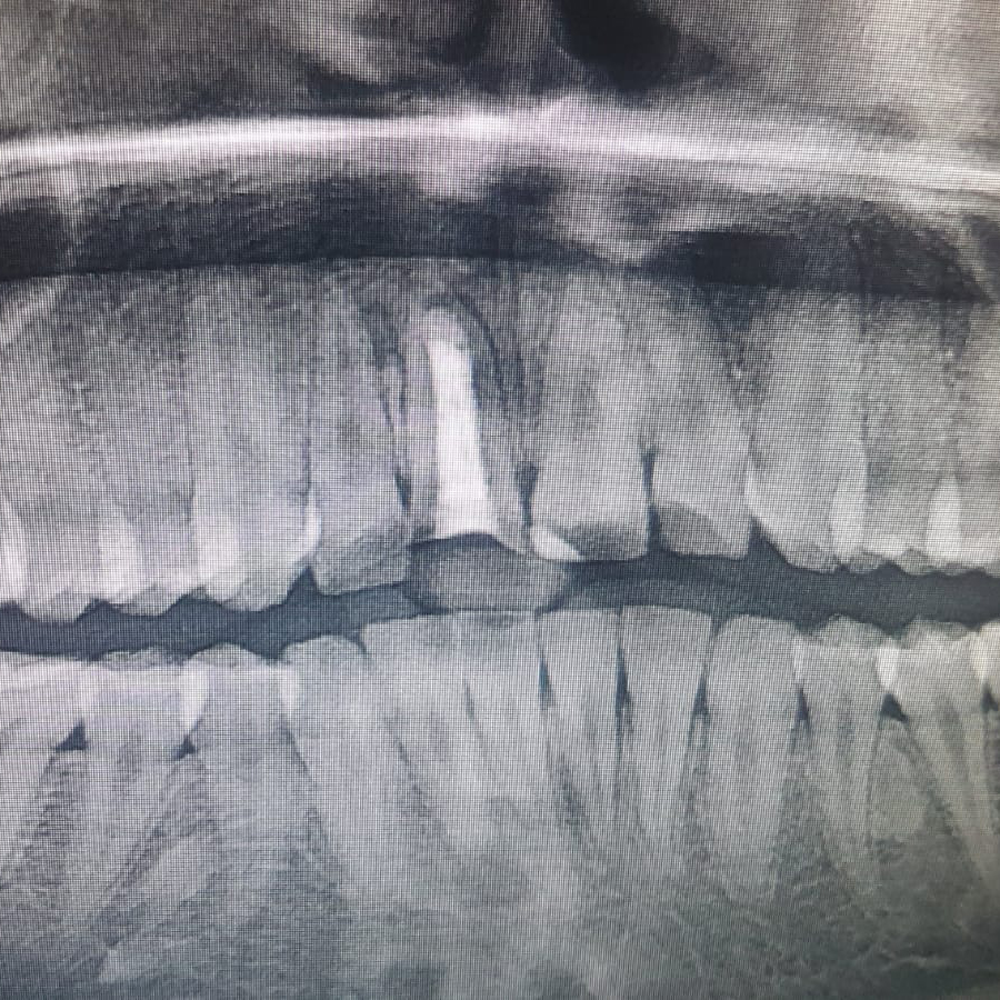sancaktepe endodonti tedavisi