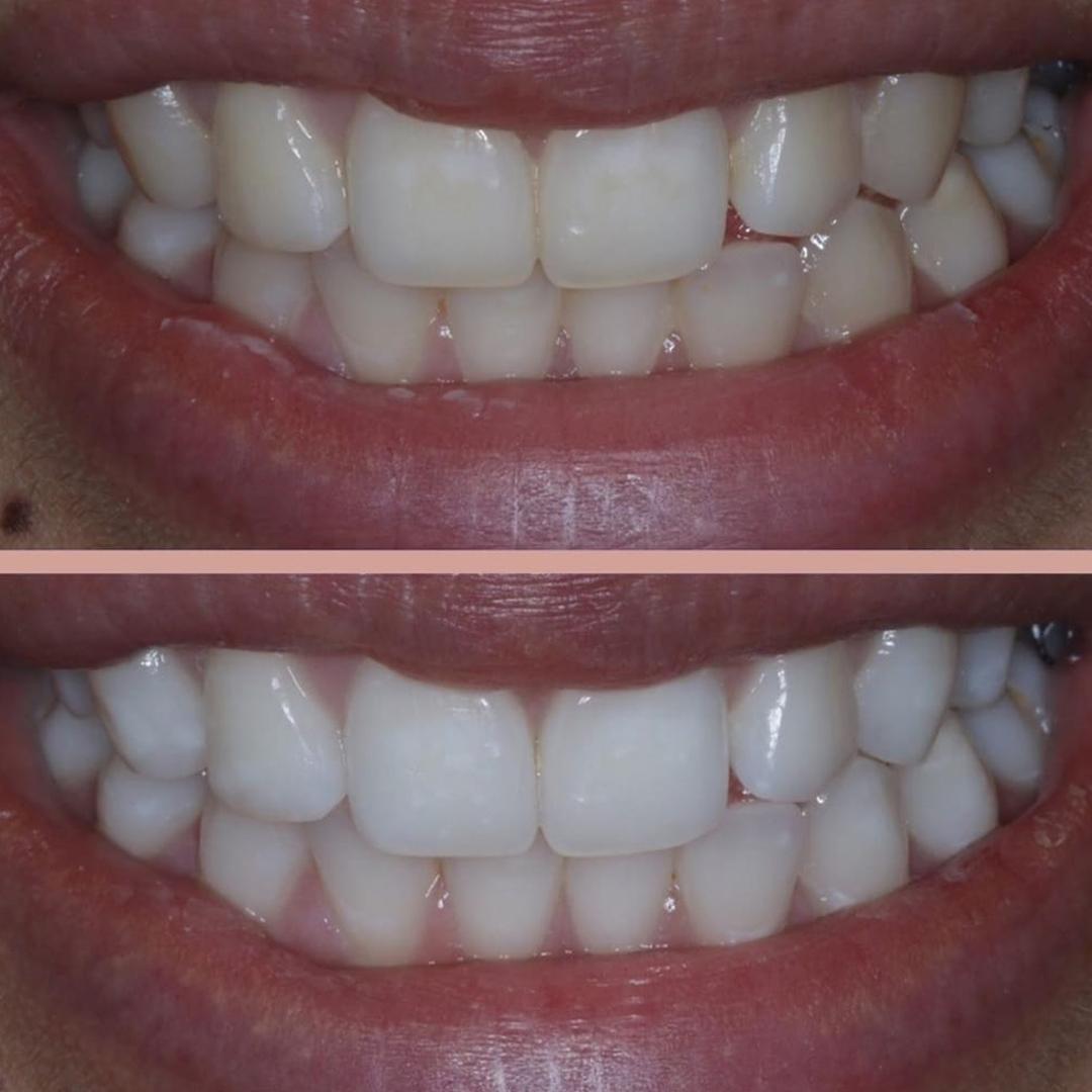 sultangazi diş beyazlatma tedavisi