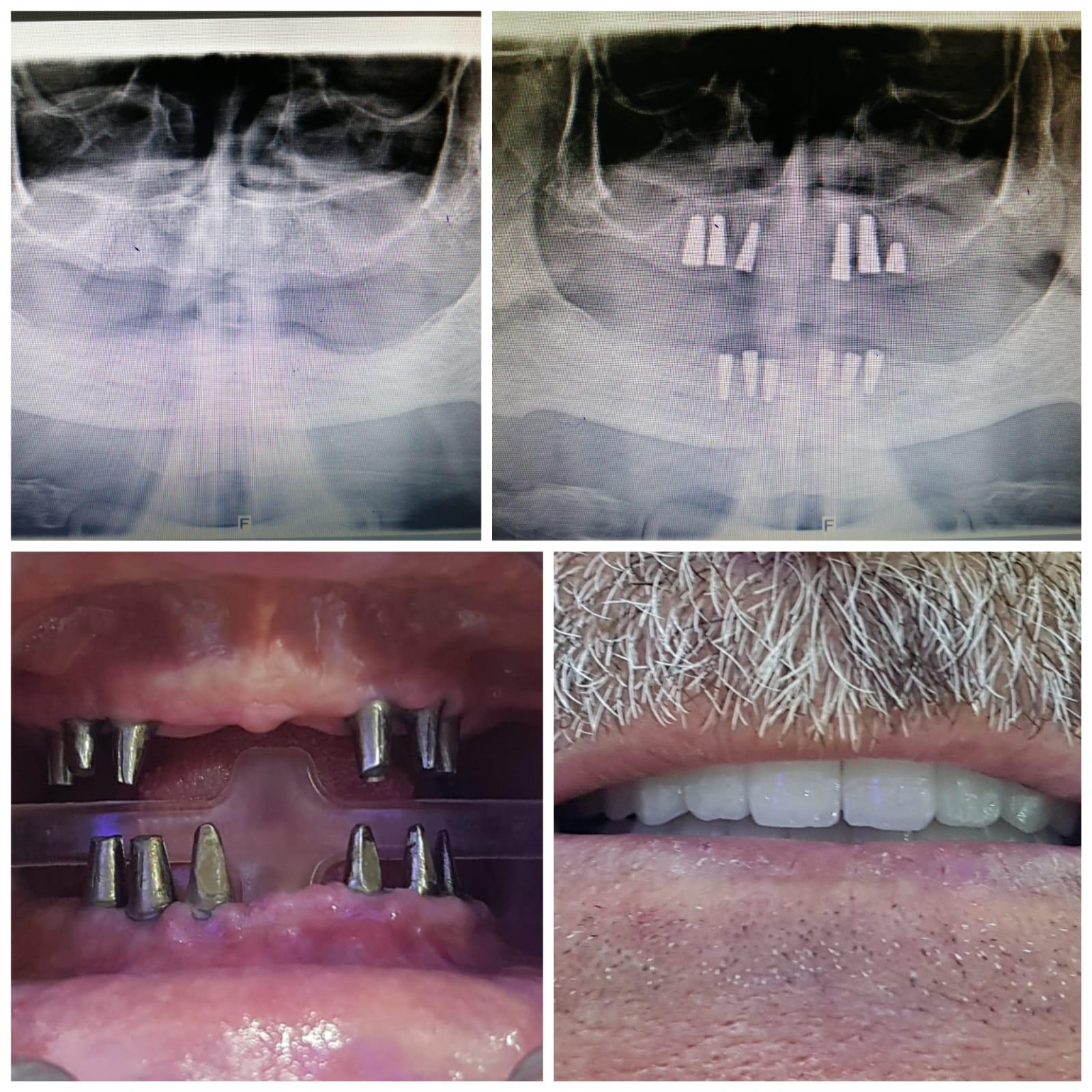 sultangazi implant tedavisi