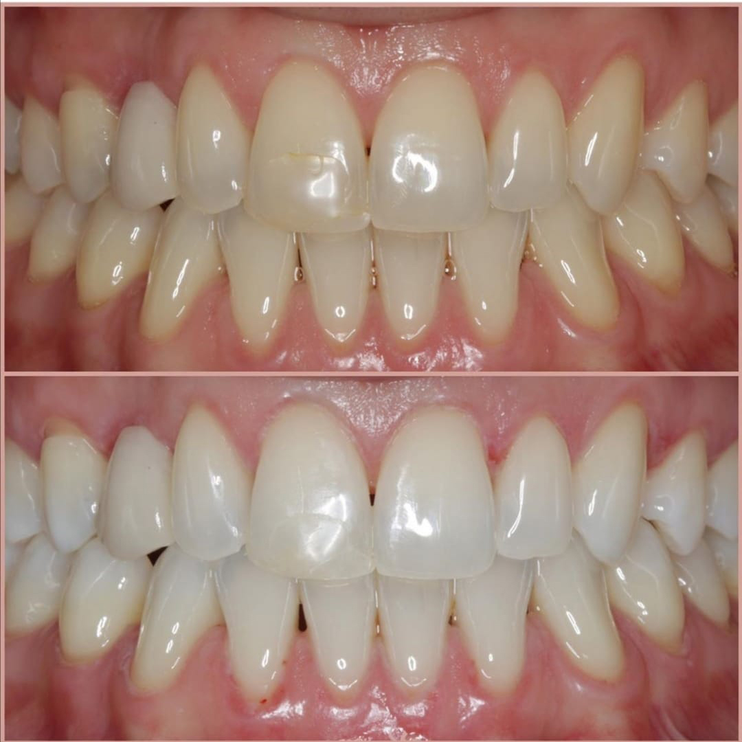 zeytinburnu diş beyazlatma tedavileri