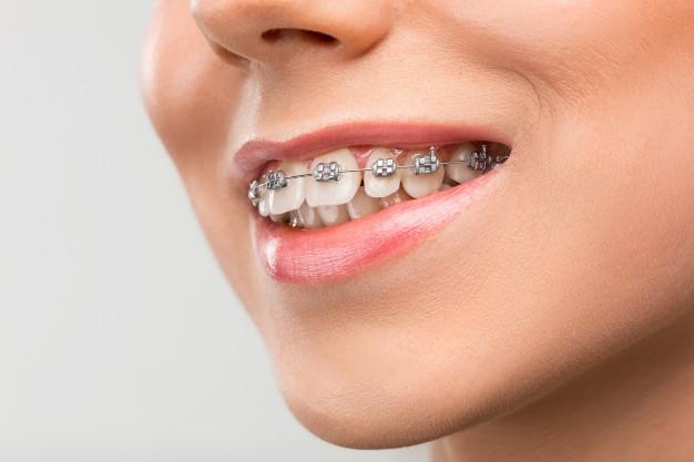 Şeffaf Diş teli nedir? metal diş teli mi nedir?