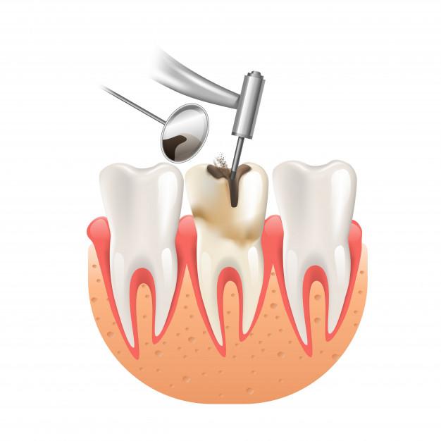 kanal tedavisinden sonra diş fırçalanır mı?