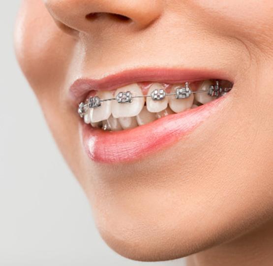 şeffaf diş teli mi? metal diş teli mi?