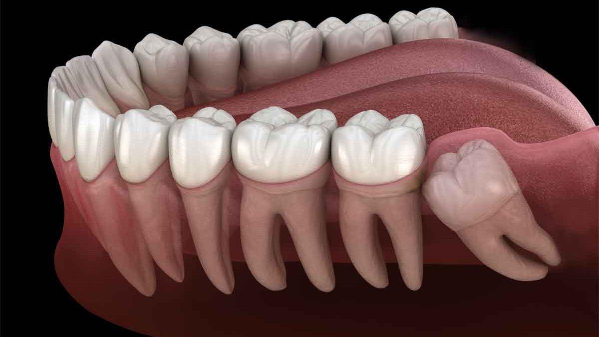 bütün yirmi yaş dişleri çekilmeli mi?