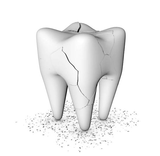 çatlak diş sendromu nedir?