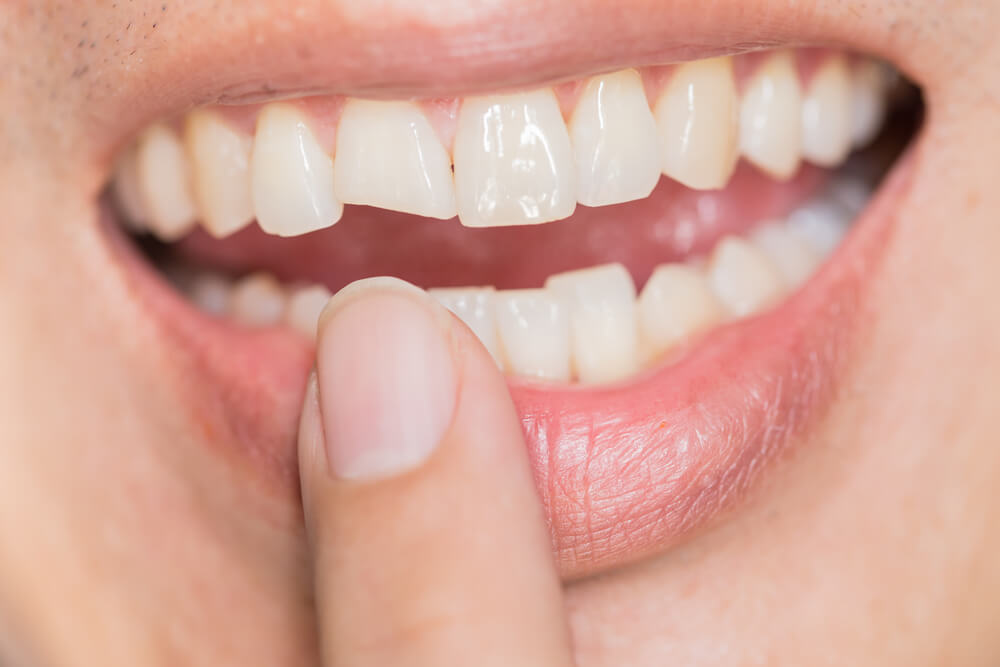 çatlak diş sendromu