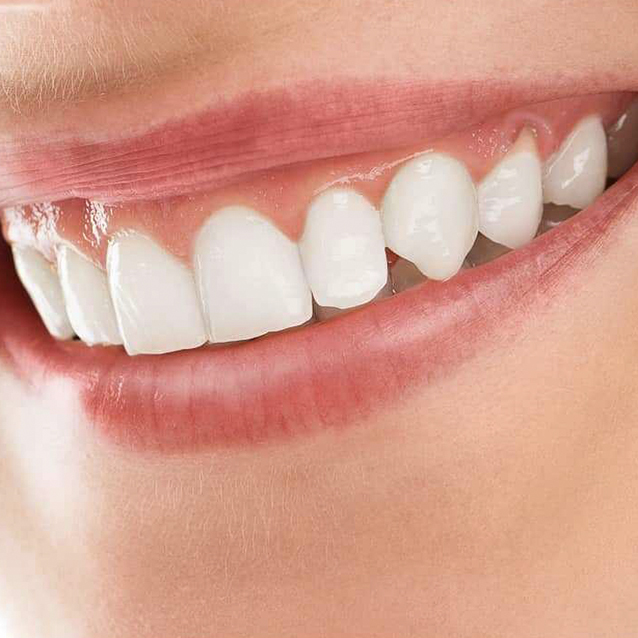 Detertraj (Diş Taşı Temizliği) nedir?